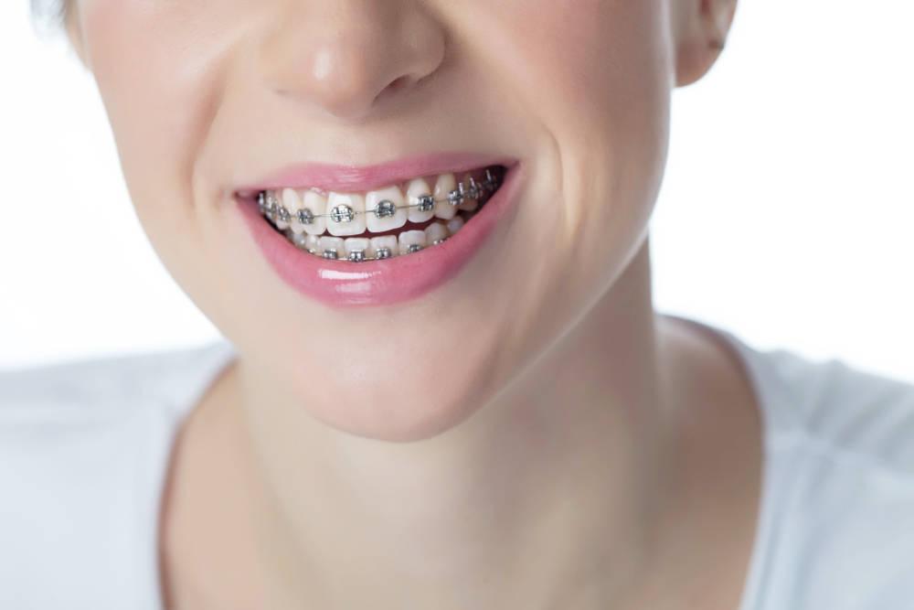 Conoce que tipos de aparatos dentales existen